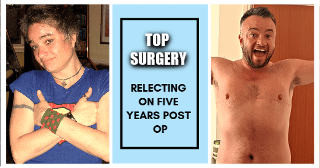 Top Surgery; reflecting on five years post OP